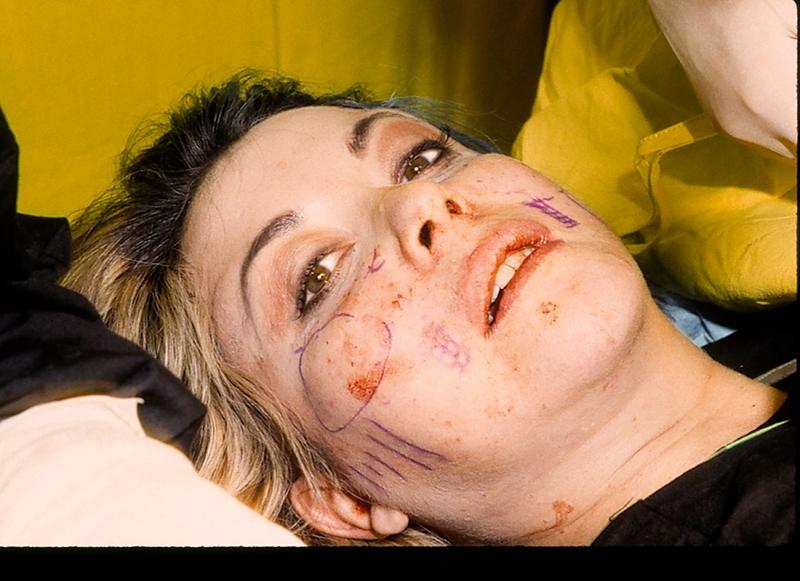 9e Operation chirurgicale04